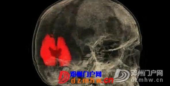 围观女性性高潮大脑核磁共振影像! - 邓州门户网 邓州网 - 100933t3nts7337srw3tsp.jpg