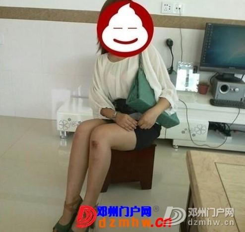 女朋友和闺蜜昨晚去酒吧,回来晚了,说在路上摔了一跤 - 邓州门户网|邓州网 - 290917_dae313530497999bc4ee0d0cd82a2.jpg