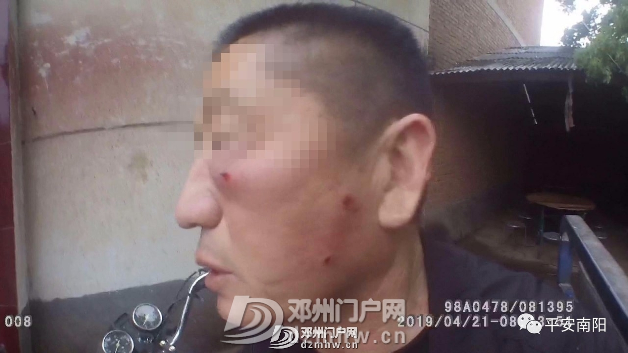 邓州男子持刀行凶追砍群众 民警挺身相护血染警服 - 邓州门户网|邓州网 - 23aff76f5b5333dc06a7faf72dc5a392.jpg