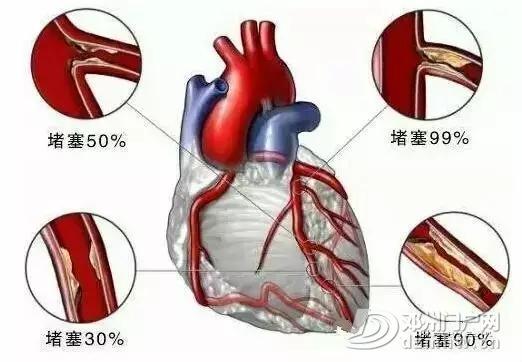 邓州杨氏微排栓---全国独创,拯救心脑血管疾病患者的最快捷径 - 邓州门户网 邓州网 - 8689a2c6211d4f829d6004590b02f28c.webp.jpg