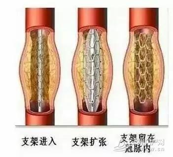 邓州杨氏微排栓---全国独创,拯救心脑血管疾病患者的最快捷径 - 邓州门户网 邓州网 - f39978e1cb3940c9be3e5148028b561a.webp.jpg
