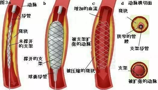 邓州杨氏微排栓---全国独创,拯救心脑血管疾病患者的最快捷径 - 邓州门户网|邓州网 - 06624b803ae440a99b17576d38b6d604.webp.jpg