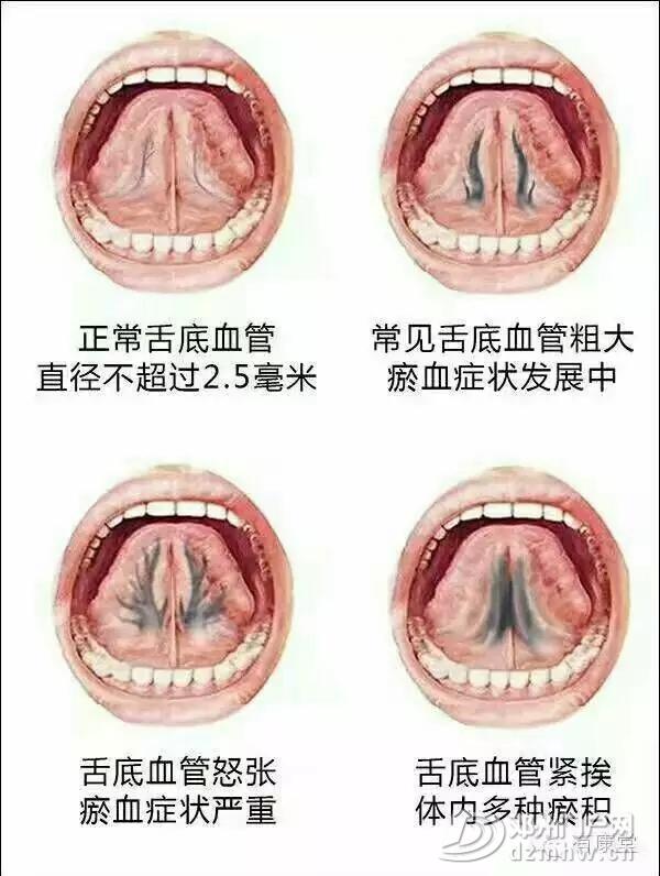 邓州杨氏微排栓---全国独创,拯救心脑血管疾病患者的最快捷径 - 邓州门户网|邓州网 - 344258779f104793b40ab2b6f7c50f5f.webp.jpg
